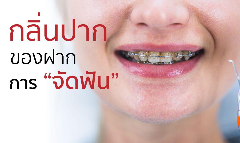 การจัดฟัน ความสวยงามที่มาพร้อมกันกลิ่นปาก