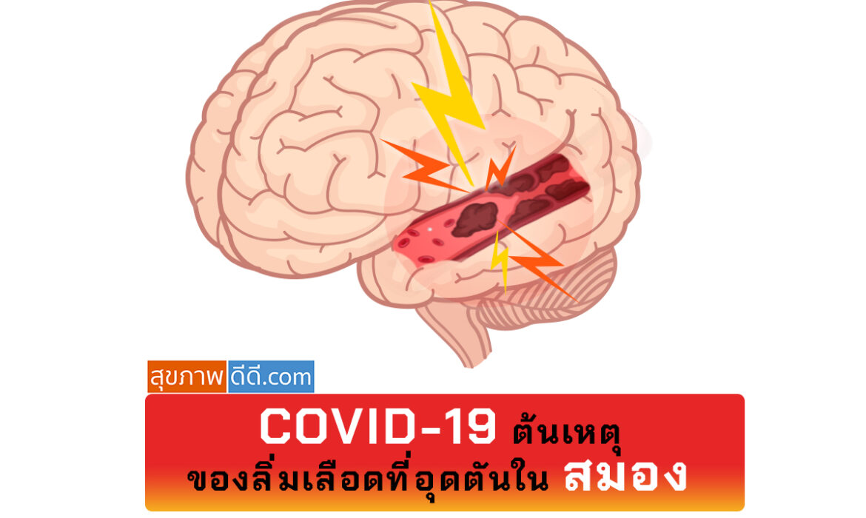 COVID ทําให้เกิดลิ่มเลือด