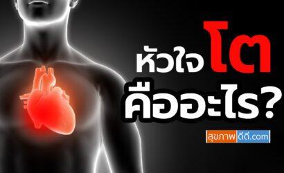 หัวใจโต มีอาการเป็นยังไง